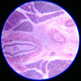 CAMAR 60X-100X LED Lighted Pocket Microscope